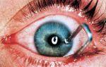 Ранение глаза — все о зрении