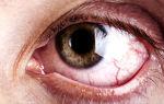 Рак глаза – все о зрении