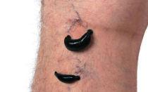 Гирудотерапия (лечение пиявками) в офтальмологии — все о зрении