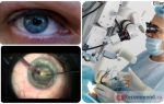 Осложнения операции по удалению катаракты – все о зрении