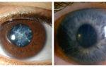 Обнаружена еще одна причина развития катаракты и глаукомы – все о зрении