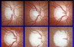 Экскавация диска зрительного нерва — все о зрении