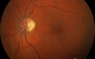 Антибактериальные мази для глаз — все о зрении