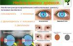 Корковая слепота — все о зрении