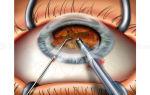 Операция lasik – памятка для пациентов – все о зрении