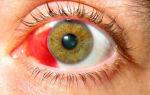Красные белки глаз – что делать? – все о зрении