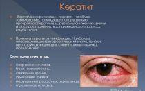 Снижение зрения на один глаз — причины и лечение — все о зрении
